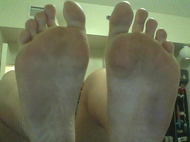 Feet after a day at Magic Kingdom! Not too bad
