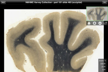 Einstein's Brain Now an Interactive iPad App  The brain that revolutionized physics now can be downloaded as an appfor $9.99. But it won't help you win at Angry Birds. While Albert Einstein's genius isn't included, an exclusive iPad application launched Tuesday promises to make detailed images of his brain more accessible to scientists than ever before. Teachers, students and anyone who's curious also can get a look.