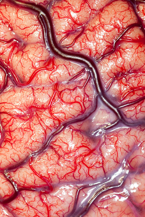 "This photograph of the surface of a human brain (selected as the grand prize winner) captures the intimate view that a neurosurgeon had while operating on an epileptic patient. ""The arteries are bright scarlet with oxygenated blood, the veins deep purple and the 'grey matter' of the brain a flushed, delicate pink,"" said Alice Roberts, an anatomist and one of the judges, in a press release. ""It is quite extraordinary."""