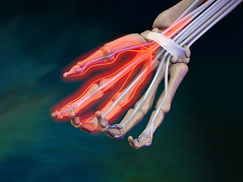 ucsdhealthsciences:  Carpal tunnel syndrome: a Q & A with Reid Abrams, chief of hand and microvascular surgery Carpal tunnel syndrome (CTS) is not a modern affliction. It has plagued workers since at least the Industrial Revolution and the dramatic rise in jobs requiring repetitive, physically stressing movements, from assembly-line workers to meat-cutters and machine operators.There may be fewer of those jobs these days, but plenty of other ways to develop CTS, from dental hygienists and supermarket cashiers to bank tellers and baseball pitchers. Women are three times more likely to develop CTS than men, according to the National Institutes of Health, though the reasons are unclear. Evidence suggests 3 percent of women and 2 percent of men will be diagnosed with CTS during their lifetime. Age is major risk factor. Peak prevalence for CTS occurs in women older than 55. Researchers have been studying CTS and other repetitive stress injuries for years, with clinical trials focusing on preventative measures and behaviors. We asked Reid Abrams, MD, professor of clinical orthopedic surgery at UC San Diego and chief of hand and microvascular surgery at the UC San Diego Medical Center, to talk about what's known about CTS and how best to treat it.Q: What is carpel tunnel?A: The carpal tunnel is an oval-shaped canal at the base of the palm, about 1 ½ inches long and an inch wide. The tunnel is surrounded on three sides by bone and on the palm side by a thick ligament. All of the flexor tendons that control the fingers and thumb run through the tunnel, plus the median nerve. This is the nerve responsible for sensation in the thumb, index, middle and half of the ring finger, plus motor function for most of the muscles at the base of the thumb.  CTS is what happens when the median nerve becomes compressed.Q: How do you know you have CTS?A: The condition produces a constellation of symptoms, including intermittent or constant numbness or tingling in the thumb, index, long and ring fingers. There can be hand numbness, tingling or burning at night, which awakens patients; swelling or stiffness in the hand; grip weakness; a tendency to drop things. Not all hand pain is caused by CTS. If the pain is not associated with hand tingling or numbness, it's not CTS.  Also, not all hand tingling or numbness is CTS.  Other nerve problems originating in the hand, forearm, elbow, shoulder or neck can also cause these symptoms. Q: What causes it?A: CTS occurs when there is abnormally high pressure on the median nerve, so high that the nerve can't function. That pressure can be the result of an injury that produces sudden swelling, like a wrist fracture, or something else in the canal crowding the nerve, like an engorged blood vessel or intruding muscle. Most often, the cause is idiopathic or unknown. It's often activity-related because the dimensions of the carpel tunnel change with different positions of the wrist and fingers. Activities such as driving, tightly holding a book or newspaper while reading, jobs that entail sustained periods of wrist flexion or extension while gripping or pinching, such as maneuvers performed by a dental hygienist, mechanic or construction worker, can bring on symptoms. Some summer activities can set off CTS, such as carrying a surfboard for long distances, cycling or racket sports. It's a myth that keyboard use causes CTS. It's been shown that intense keyboard users have the same incidence of CTS as the general population. This is not to say that symptoms of CTS can't be brought on by keyboard use. If keyboarding is performed in a non-ergonomic fashion, with the wrists in hyper-flexion or extension, CTS symptoms could arise.  Keyboarding can also be responsible for painful problems other than CTS.Q: How is CTS treated? A: In the mildest forms, keeping the wrist straight or wearing a splint at night may completely relieve symptoms. Avoiding extreme wrist positioning and repetitive or sustained heavy pinching and gripping can help. Cortisone injections into the carpal canal can also provide temporary relief, though severe CTS usually requires surgery. Carpal tunnel release surgery enlarges the carpal canal by cutting the transverse carpal ligament.  We know the ligament heals with the canal 25 percent bigger. It's highly successful with rare complications, failures or recurrences. There are two basic techniques; both work. Endoscopic is done through one or two small incisions using a visualizing camera and a specialized small blade. It produces a modestly faster return to work, but has a three-fold higher incidence of transient median nerve injury. Open surgery through an incision in the palm has a slightly higher incidence of wound healing problems.