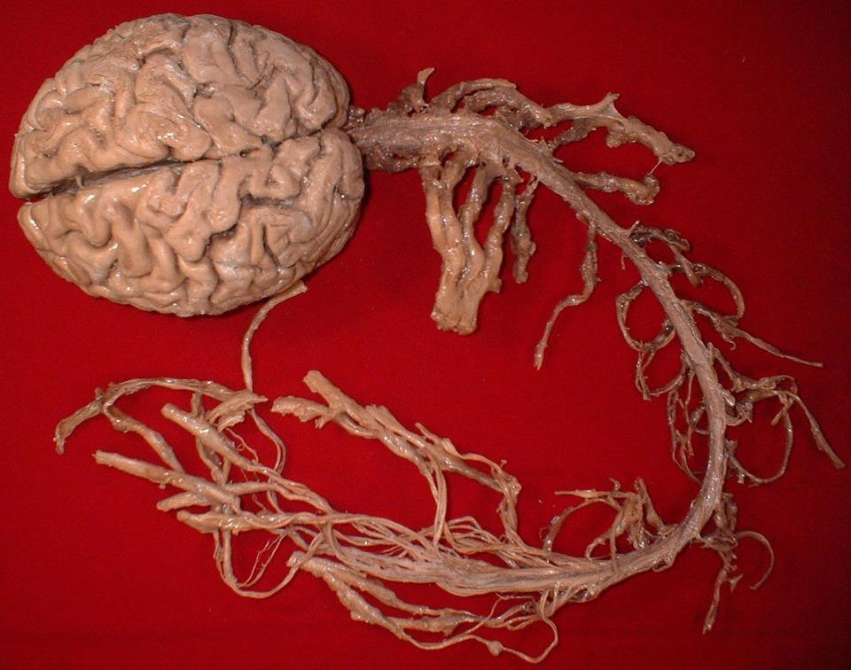 What your Central Nervous System (CNS) looks like…and some of the Peripheral Nervous System (PNS), too.