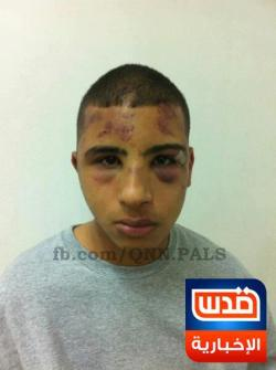 "wherismymind:  Palestinian minor Hassan Afifi, brutally assaulted by Israeli soldiers after being arrested in Jerusalem last Friday following Israel's raid on worshippers in AlAqsa mosque. This is how Palestinian children are treated in Israeli prisons, and the story remains untold. Share and show the true side of ""Israel"" and Zionism."