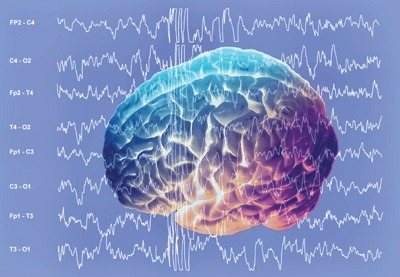 Alpha Waves Close Your Mind for Distraction, but Not Continuously, Research Suggests Alpha waves were long ignored, but gained interest of brain researchers recently. Electrical activity of groups of brain cells results in brain waves with different amplitudes. The so-called alpha wave, a slow brain wave with a cycle of 100 milliseconds, seems to play a key role in suppressing irrelevant brain activity. The current hypothesis is that this alpha wave is associated with pulses of inhibition (every 100 ms) in the brain. Mathilde Bonnefond and Ole Jensen (Donders Institute for Brain, Cognition and Behaviour, Radboud University Nijmegen) discovered that when distracting information can be anticipated in time there is an increase of the power of this alpha wave just before the distracter. Furthermore, the brain is able to precisely control the alpha wave so that the pulse of inhibition is maximal when the distracter appears. Indeed, between pulses of inhibition, there is still a window where the brain is excitable. 'It is like briefly opening a door to look what's happening outside. This enables us to detect an unexpected but important or dangerous event. But to avoid to be distracted by completely irrelevant information, it is better if the inhibition is active when a distracter is presented. It could be seen as a mechanism slamming the door of the brain on intruders'. The results are published by the scientific journal Current Biology at October 4.