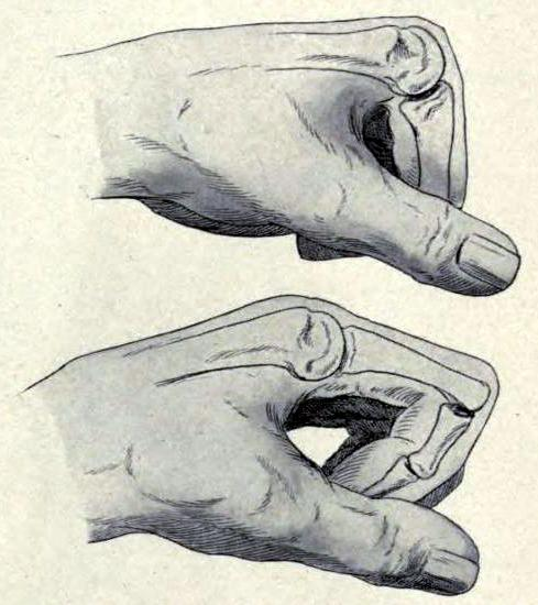 "biomedicalephemera:  Bone attitude during flexion of the fingers The knuckles are much more prominent when the hand is clenched, or the fingers are flexed - this is because when the phalanges are pulled toward the palm, the metacarpus (note: term for all metacarpal bones taken as one unit) is largely stationary. The carpals slide down, and the heads of the metacarpals are made to be the prominent protuberances. On a side note, the source of the sound made while cracking your knuckles still hasn't been definitively proven. However, the ""cavitation"" theory, that small cavities of partial vacuum form and rapidly collapse within the synovial fluid, is the most well-supported and widely-theorized. Oh, and you won't get arthritis by cracking your knuckles, unless you have some preexisting condition that I've never heard of (granted, I've never heard of most conditions that affect bones…). There have been several large, long-term cohort studies that show no correlation between arthritis and knuckle cracking. Well-designed studies aside, there's also Dr. Donald Unger (winner of the 2009 Ig Nobel Prize in Medicine), who, after being told by his mother that he'd get arthritis if he kept the habit up, cracked the knuckles on one hand every single day, multiple times a day, for over 60 years. He never cracked the knuckles on his other hand. Neither of them developed arthritis or any other condition. Now THAT'S a dedication to science! Applied Anatomy; the construction of the human body. Gwilym G. Davis, 1915."