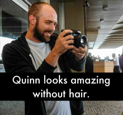 Anonymous: Quinn looks amazing without hair.