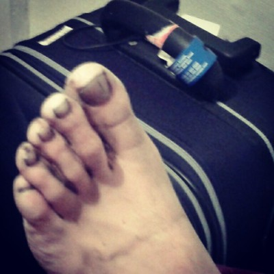 Harrys gollum foot (Taken with Instagram)