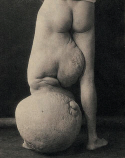 Elephantiasis of the leg of a young man, date unknown.