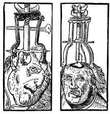 This engraving from 1525 demonstrates the act of trepanation. Still practiced in modern medicine, trepanning refers to drilling or creating a hole in order to relieve pressure. In pre-modern Europe, trepanning referred to drilling a whole into the patient's head in order to relieve epilepsy or other similar afflictions. Strangely, trepanation was rarely fatal and the patient generally recovered without infection.