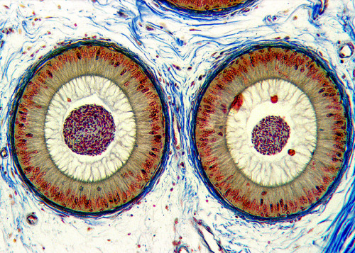 The human epididymis duct (650-times magnification) Image by Dr. William B. Winborn, University of Texas Health Science Center at San Antonio.