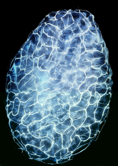 A whole testicle of a finch (four-times magnification) Image by Dr. Nils O. E. Krutzfeldt, University of Auckland.