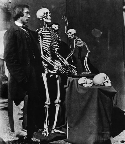 "Reginald Southey with human and monkey skeleton Albumen photograph by Charles Lutwidge Dodgson (nom de plume Lewis Caroll, author of Alice in Wonderland), 1857. Reginald Southey was an English physician who invented a specialized cannula (tube) for draining the excess fluid from limbs suffering from edema (dropsy). He also apparently served on England's ""Lunacy Commission"" so…there's that. Southey was lifelong friends with Charles Lutwidge Dodgson and was the one who encouraged him to take up photography. The pensive expression on Southey's face betrays the fact that he's standing with his arm around a skeleton rather than a live human. The composition of the photograph and the portrayal of the abnormal as mundane strikes me as incredibly reminiscent of the worlds Dodgson created in his writings."