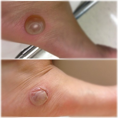 My poor foot 😭😭😭😭 Blister at its peak (Monday) and now healing