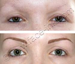 Hair Stroke Brow Simulation for Lost Hair