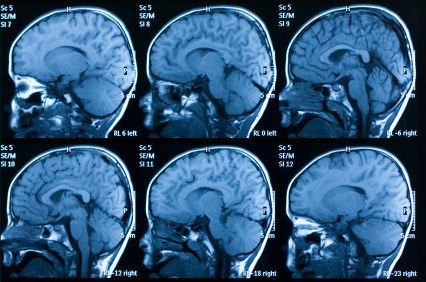 neurosciencestuff:  5 Bizarre Ways Brain Scans Can Predict the Future