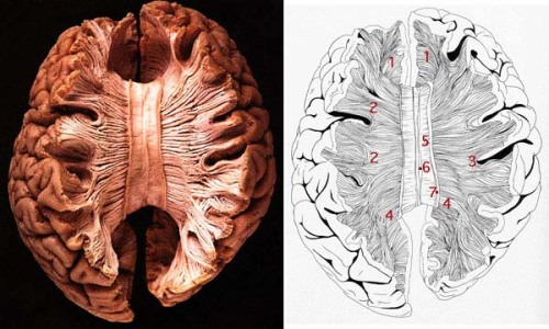 cryptobranchus:  neurolove:  Corpus Callosum The corpus callosum is a large white matter tract that connects the two hemispheres of the brain.  The only way the two cortices can communicate with each other is through the corpus callosum- above the corpus callosum is not connected, so you can actually separate the two hemispheres down to the corpus callosum with your hands (once the meninges have been removed).  Here, part of the cortex has also been removed so that there is better visibility for the corpus callosum- it's the part in the middle of there brain there that looks like a band.  When it is severed, the brain can compensate fairly well and the individual will appear completely normal and functional, until they are doing certain tasks with one side that does not have that capability (for instance verbalizing something that they see only with their left visual field, which is processed on the right side of the brain, when language is contained on the left side of the brain- a task that would require the two sides to communicate). [Image found here]  Beautiful image of the Corpus Callosum!