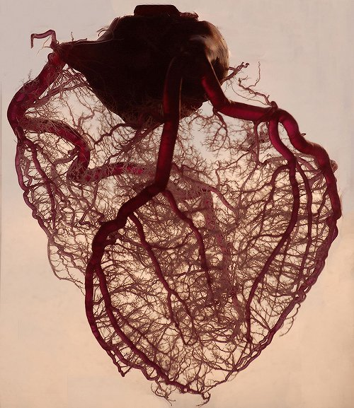 intellectualconsilience:  Anatomical Heart by Glockoma  This is the vasculature of an actual heart (porcine heart, identical to human heart). The blood is replaced by a plastic substance which fills all of the veins, capillaries, etc, then the heart is put into a solution that dissolves all the tissue, leaving this incredible detail of a heart. My boss was given this to use as a model (he is a cardiologist).   This…is awesome.