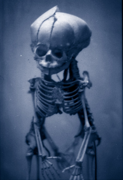 Conjoined fetal skeleton with heart preserved in situ.