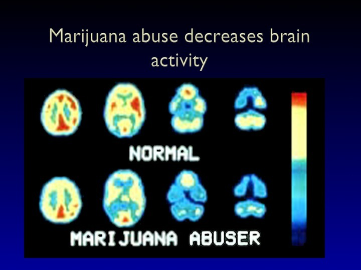 anitdrugsupport:  The brains of people who smoke marijuana look very different than the brains of people who do not smoke. The image below  shows the normal brain on top and the marijuana user's brain on the bottom. The brains of the marijuana users are hypometabolic, which means that there is a significantly reduced brain metabolism. Chronic use keeps these levels reduced. The Feinstein scientists have scanned people years after they have stopped using and their brains continue to have the signature of a marijuana smoker.