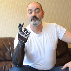 Luke Skywalker's robotic hand is finally a reality: The Bebionic3 is a myoelectric prosthetic hand that uses residual neuro-muscular signals from your muscles to operate a number of precise functions. To see the hand in action is to immediately recall the scene in Star Wars: The Empire Strikes Back in which Luke Skywalker examines his new robotic hand after losing it to Darth Vader. The hand is about as realistic and functional as the one in the film, with the ability to write with pen, delicately hold glasses and bottles, and even crack eggs. Click through for some videos.