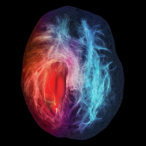 "freshphotons:  ""The image is the result of fiber tractography from diffusion-weighted magnetic resonance imaging. It illustrates the white matter of the brain, or in other words, its structural connections. The red smooth surface represents a glioblastoma tumor. We can see the effect of repulsion and infiltration of this mass on the white matter fiber pathways. A distance colormap is used for interpretation. Blue fibers mean that they are located within a safe distance of the tumor whereas red fibers are in a close perimeter to the tumor, and can cause severe post-operation deficits, if resected."" -Cerebral Infiltration, Maxime Chamberland, David Fortin, Maxime Descoteaux, Sherbrooke Connectivity Imaging Lab."