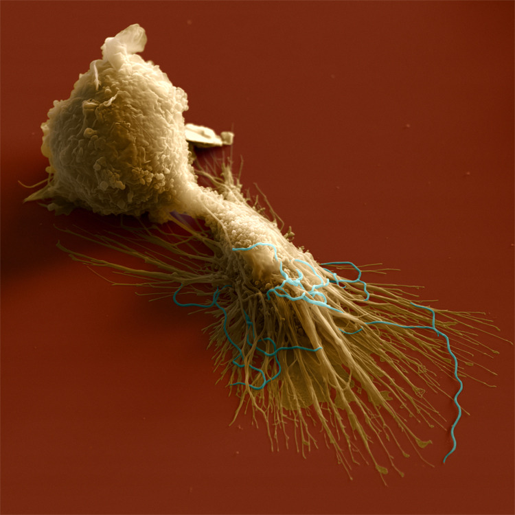 A macrophage (pale brown) interacts with Borrelia cells (blue), the spirochete bacteria that cause Lyme disease. Although the outer membrane of Borrelia contains a strong antigen, the OspC protein, the bacterium successfully evades the human immune system by hiding out in places less accessible to immune cells, such as the central nervous system. By eye of science/Nicole Ottawa and Oliver Meckes