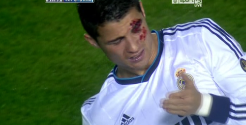 Cristiano Ronaldo got injured early in the Levante-Real Madrid game. He was vehemently elbowed by Levante's David Navarro. Nevertheless, Ronaldo opened up the score for Real. Shortly after, he left the game with a concussion. Cristiano Ronaldo is in danger of losing vision. And yet, people still hate on him, bash on him, and say whatever crap about him. I don't see Lionel Messi scoring with impaled vision. Show this guy the respect he deserves. At times he can be arrogant, but he can back up that arrogance because he plays the game with his heart, 110% each game. I freaking love you, Cristiano Ronaldo dos Santos Aveiro. <3