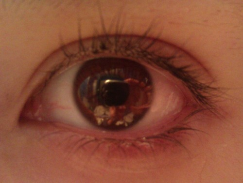 My eye… You can see reflections of things in it… wwwhhoooaa