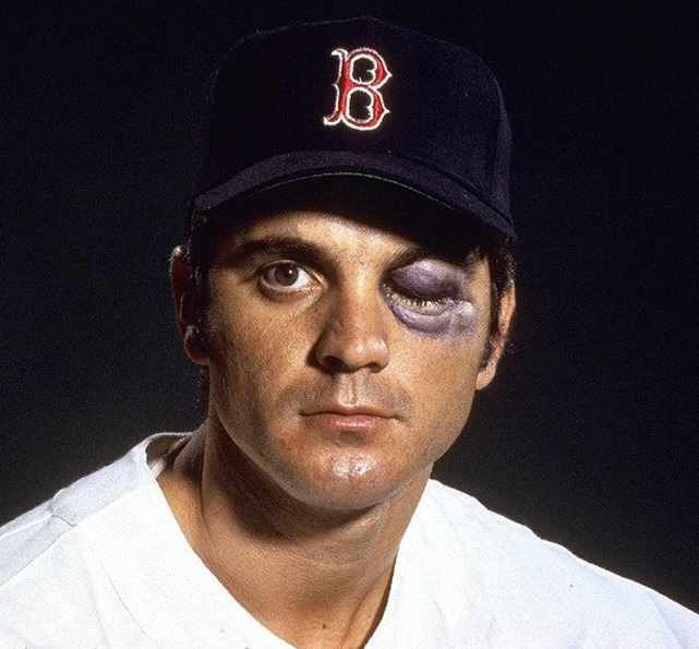 Closeup portrait of Boston Red Sox outfielder Tony Conigliaro with black eye, simulating an injury after getting hit by a ball. SI photographer Neil Leifer hired a makeup artist to recreate the shiner Conigliaro suffered on an August 1967 game against the Angels. (Neil Leifer/SI)   SI VAULT: Conigliaro is nearly blind and wanting a return to Boston (7.19.71)