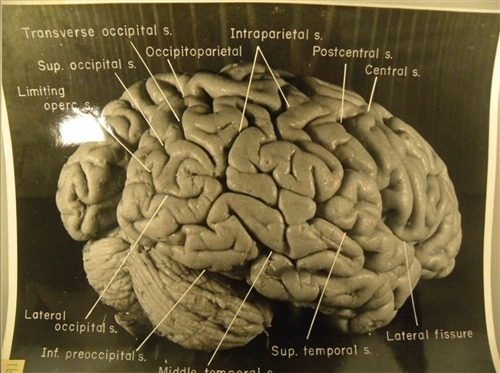 Uncovered photos of Einstein's brain reveal clues to his genius (Photo: Falk, Lepore & Noe, 2012, courtesy of the National Museum of Health and Medicine) Albert Einstein's brain had extraordinary folding patterns in several regions, which may help explain his genius, newly uncovered photographs suggest. The photographs, published Nov. 16 in the journal Brain, reveal that the brilliant physicist had extra folding in his brain's gray matter, the site of conscious thinking. Read the complete story.