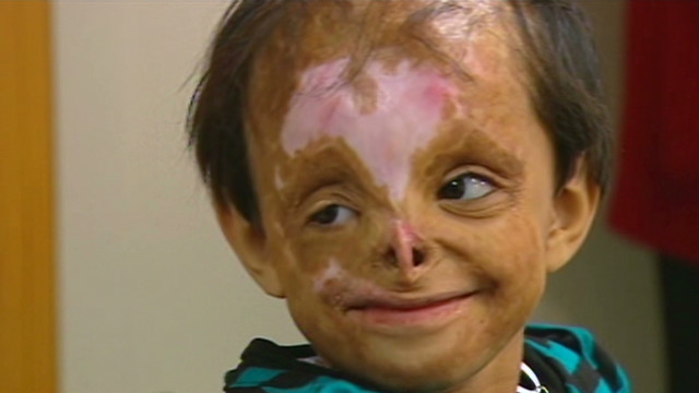 Shakira was one-year-old when she was found severely burned and near death in a trash can in Pakistan's Swat Valley. The girl had been left to die after she was badly wounded by a U.S. drone attack in 2009 ordered by Barack Obama. Shakira is just one of thousands of civilians injured by Obama's covert drone war, but I'm sure his supporters will find a way to justify it. After all, war crimes don't matter as long as it's not a republican committing them.