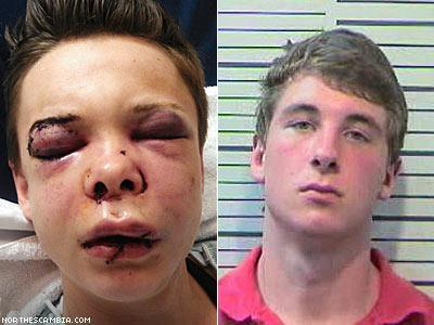 wurstcunt:  A Thanksgiving Day assault on a young lesbian in Mobile County, Alabama has infuriated LGBT activists who have responded with a viral campaign to get hate crime charges against the alleged perpetrator. According to Robin Raven at Yahoo! News, 23-year-old Mallory Owens was invited to celebrate Thanksgiving with her girlfriend's family. What happened there was anything but festive. According to Yahoo! she was attacked by her girlfriend's brother, 18-year-old Travis Hawkins, Jr., and sustained a number of severe injuries including, among others, bleeding on the brain, crushed cheek bones, broken nose, and skull fractures.  Read more here Click here to sign the petition for justice.