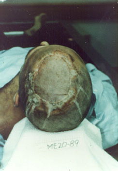 adambadam:  Ted Bundy's head and leg burns caused by the high voltage during the electrocution process. During an electric chair execution, electrodes with dampened sea sponges are placed on the inmates head and leg to complete a circuit.