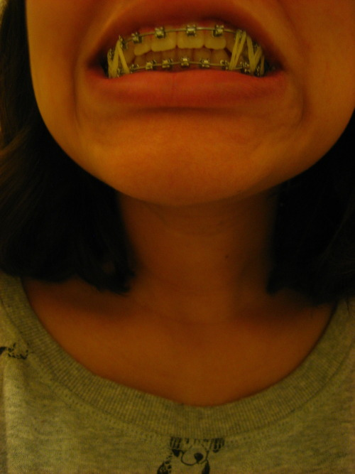 LOL so they did this to my teeth today  and I wonder if this is what it feels like to have your mouth wired shut it took me about 5 minutes to put one side of the bands on by myself not looking forward to doing this every day in India