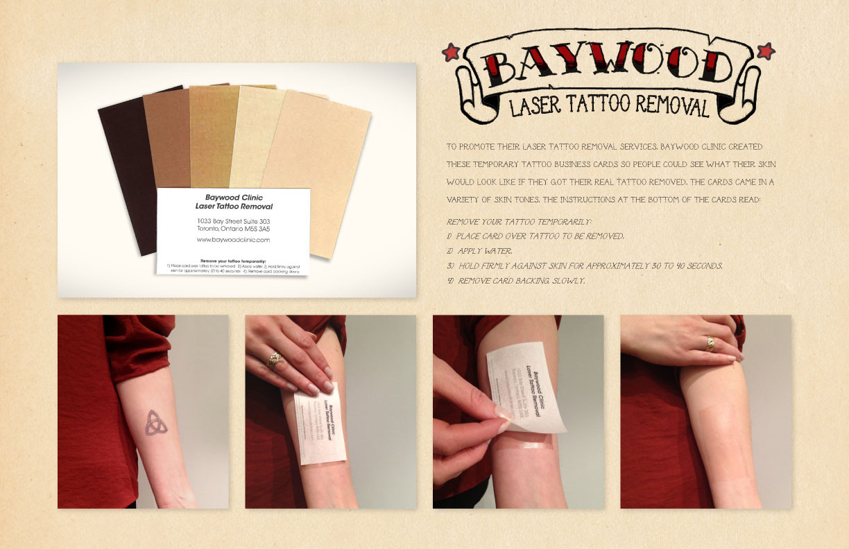 Baywood Clinic Laser Tattoo Removal: Business Card