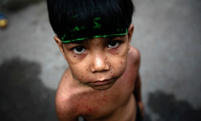A Shi'ite Muslim boy, with blood stains freckling his face and body, looks on after beating himself with razor chains during the Ashura religious festival in Yangon, Myanmar. Even the youngest of the Shi'ite mourners will beat themselves or slash their bodies with knives during Ashura to mark the death anniversary of Imam Hussein, a grandson of the Prophet Mohammad, who was killed during a battle in A.D. 680. PHOTO: REUTERS/Minzayar More incredible photos from this week's news