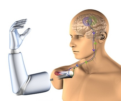 "8bitfuture:  Thought-controlled arms to be fitted to patients this Winter. Researchers in Sweden are preparing for the first operations to attach mind-controlled artificial arms to patients this (Northern) Winter. Current prostheses are only used by around 50% of arm amputees, as they are often uncomfortable and offer very limited functionality. The new technology will be anchored directly to the skeleton by a process known as osseointergation, which will mean the prosthetic arm will be more comfortable. A titanium implant inside the arm stump will pick up brain signals reaching the nerves near the point of amputation, which will be processed and sent out to the arm to electronically control specific joints and actions.  ""Our technology helps amputees to control an artificial limb, in much the same way as their own biological hand or arm, via the person's own nerves and remaining muscles. This is a huge benefit for both the individual and to society,"""