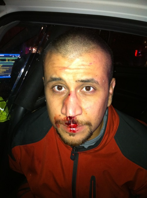 """This is a photo of George Zimmerman taken by a police officer on the night of February 26, 2012. A black and white photocopy of this image was provided by the State in the first Discovery. This high-resolution digital file was finally provided to the defense on October 29, 2012,"" the defense team posted to its website. ""This image was disclosed in the State's 9th Supplemental Discovery. In accordance with the updates to our media policy that we published on November 13, we will be making all public documents related to the case available on our website, including the rest of the State's 9th Supplemental Discovery as soon as we are sure it has been properly redacted according to the Court's stipulations on protecting information regarding specific witnesses,"" the post adds. It remains to be seen if the photo will help Zimmerman's defense, which maintains he was defending himself during a struggle with Martin that ultimately led to Zimmerman shooting Martin."